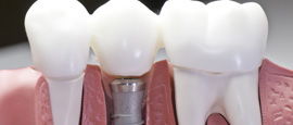 Dental Implants In the Bronx