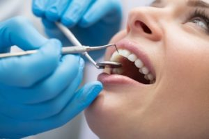Bronx patient receiving dental bonding at East Tremont Dental Associates