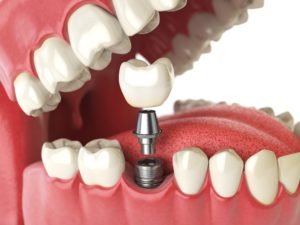 single tooth Dental Implant Bronx