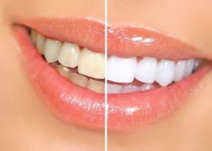 Bronx patient before and after teeth whitening photo results