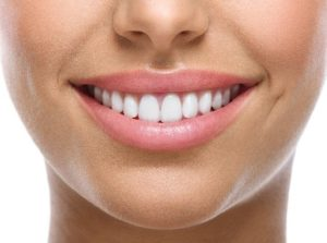 Professional teeth whitening strips process in Bronx